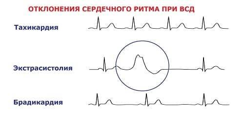 Особенности тахикардии при всд