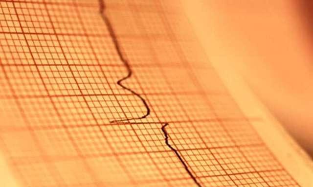 Синдром бругада – экг-признаки, диагностические критерии, симптомы, лечение, клинические рекомендации, кардиовертер-дефибриллятор