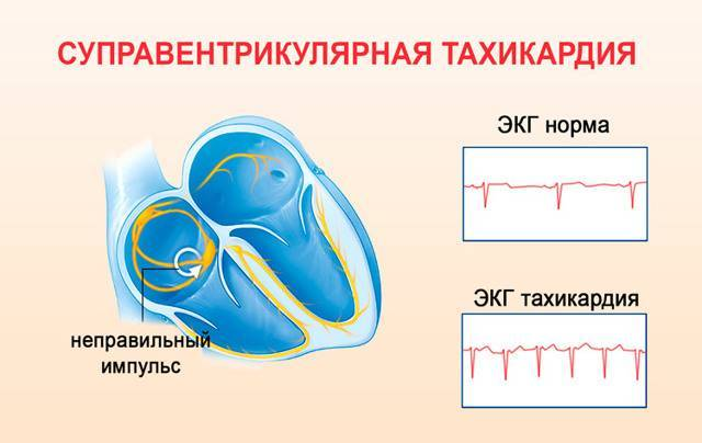 Пароксизмальная тахикардия: основные проявления, причины возникновения и методы лечебного воздействия