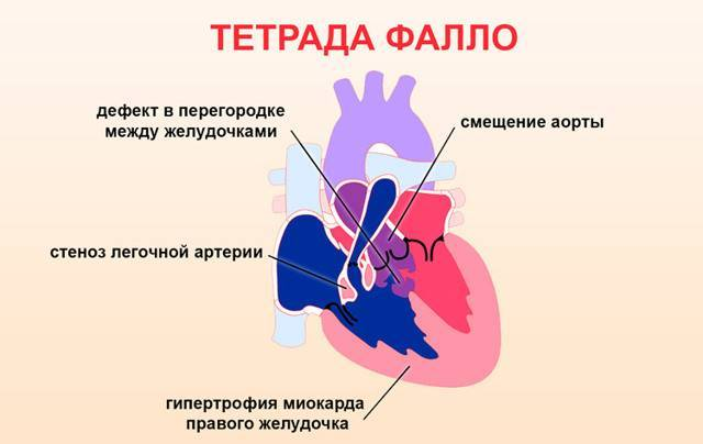 Экстрасистолия при беременности. - запись пользователя екатерина (id2078679) в сообществе здоровье будущей мамы и малыша в категории боли, орви, грипп - babyblog.ru