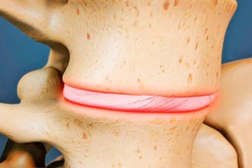 Остеохондроз и аритмия сердца — грудного отдела позвоночника, может ли вызвать, лечение