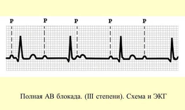 Атриовентрикулярная (ав) блокада 1-2-3 степени, полная и неполная: причины, диагностика и лечение