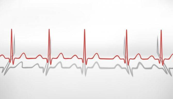 При брадикардии повысился пульс
