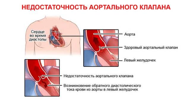 Недостаточность аортального клапана: виды болезни и схемы лечения