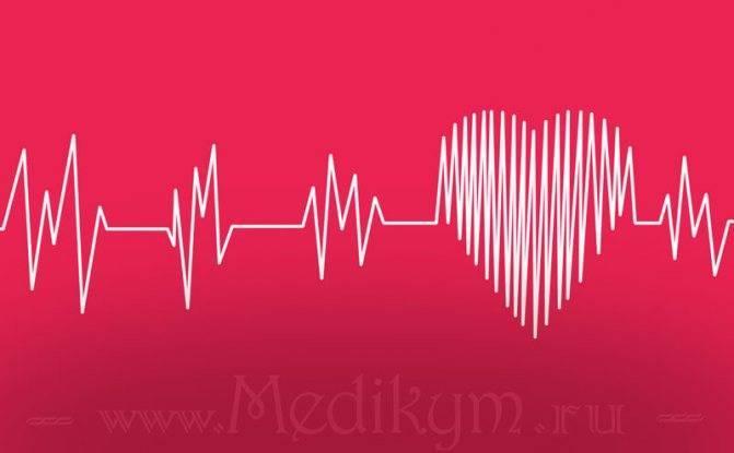 Учащенное сердцебиение - лечение народными средствами. что делать при тахикардии
