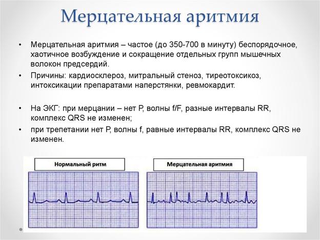 Как проявляется аритмия и ее признаки