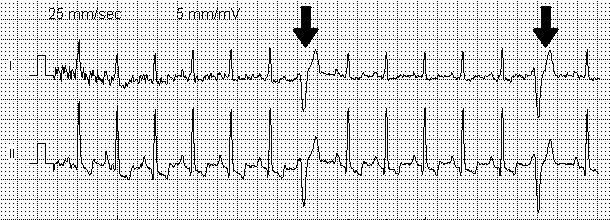 Что такое желудочковая экстрасистолия: причины и симптомы, лечение и прогноз