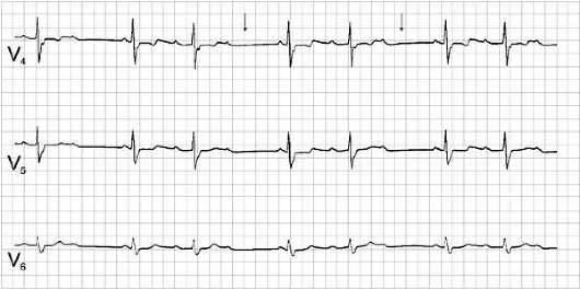 Атриовентрикулярная блокада второй степени: признаки, симптомы, диагностика, лечение, прогноз | кардио болезни