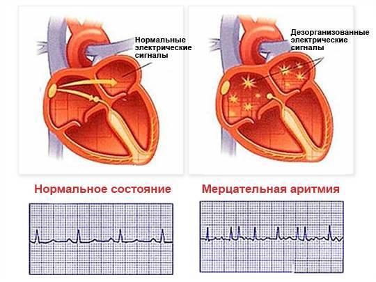Аритмии сердца: классификация, особенности каждого вида