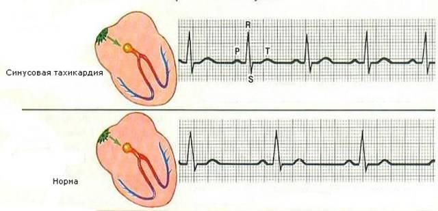 Как можно избежать учащенного сердцебиения?