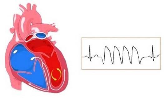 Аритмолог | медицинский центр «широких сердец»