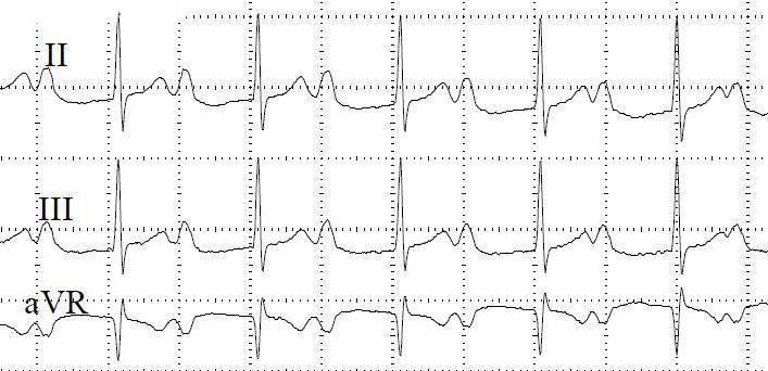Диагностические критерии  нарушений работы проводящей системы сердца