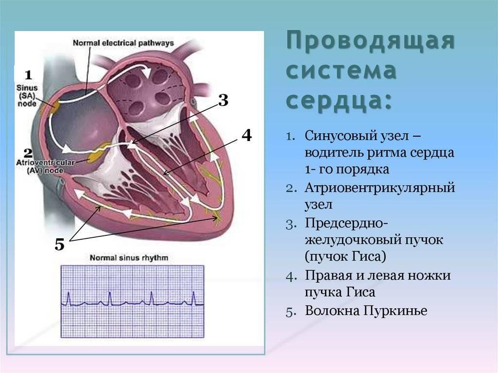 Водитель ритма сердца