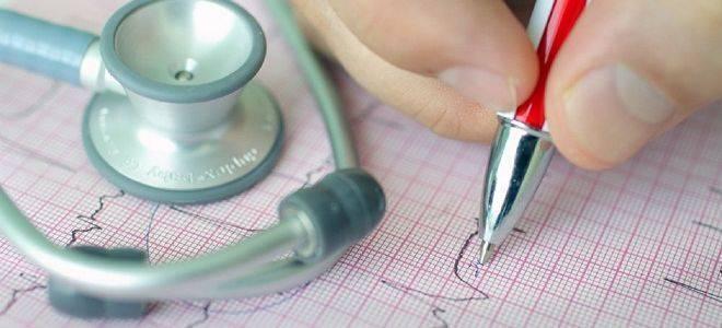 Синусовая брадикардия сердца экг