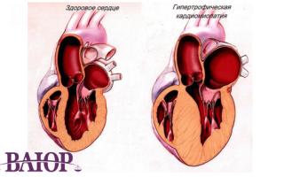 Ишемическая болезнь сердца: берут ли на службу в армию?