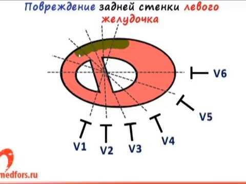Аритмия сердца — википедия с видео // wiki 2