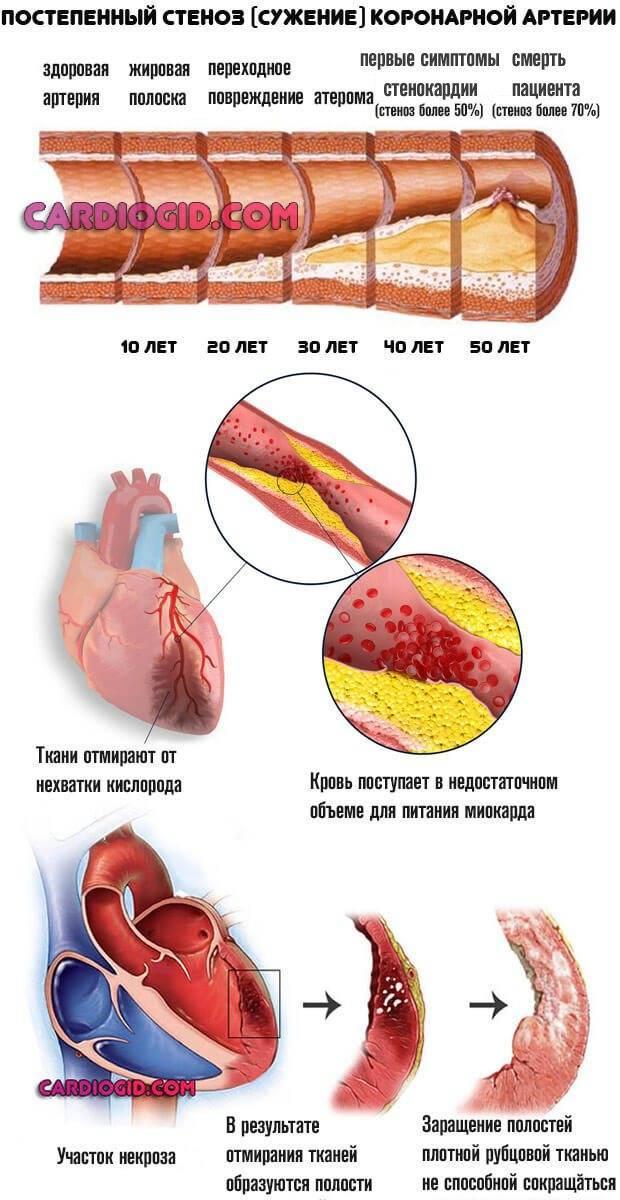 Тахикардия — причины, симптомы, диагностика и лечение — симптомы