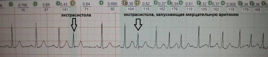 Идиопатическое нарушение ритма сердца