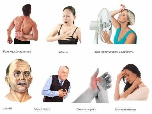 Учащенное сердцебиение при остеохондрозе