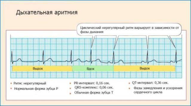 Наджелудочковая экстрасистолия: диагностика и лечение