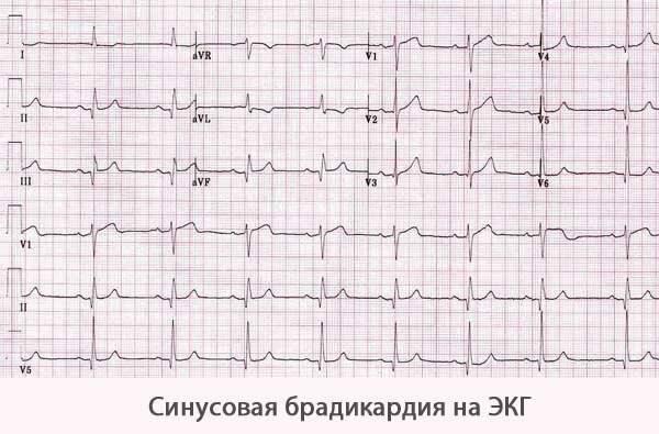 Что такое синусовый ритм сердца и его норма на экг