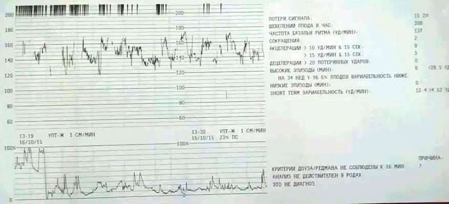 Сердцебиение плода нормы, показатели чсс