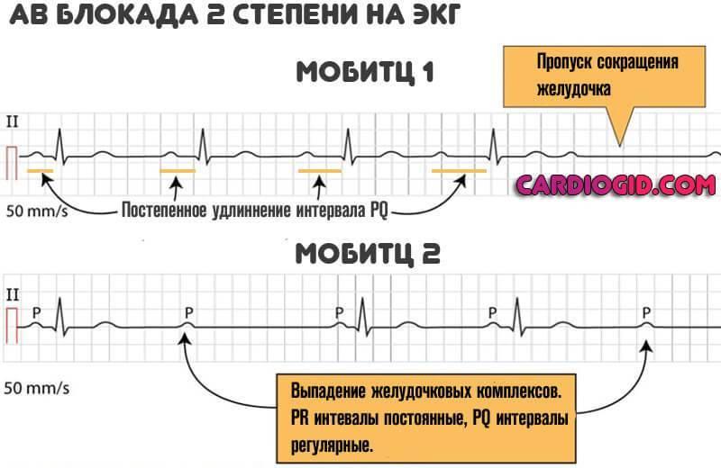 Атриовентрикулярная блокада: симптомы, классификация, диагноз, лечение | кардио болезни