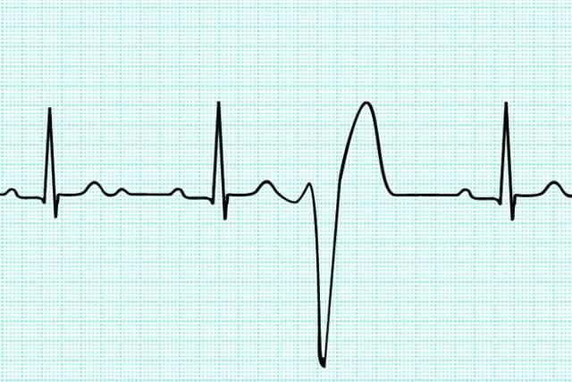 Какая связь у остеохондроза и аритмии: причины, способы диагностики, методы лечения