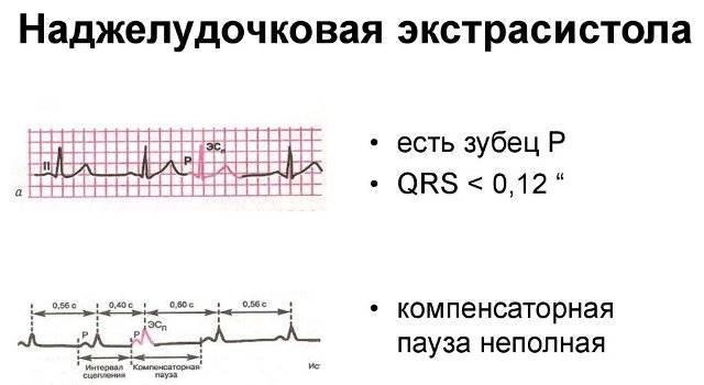 Народные средства от экстрасистолии сердца