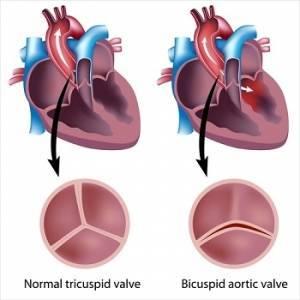 Недостаточность аортального клапана: симптомы, диагностика, лечение