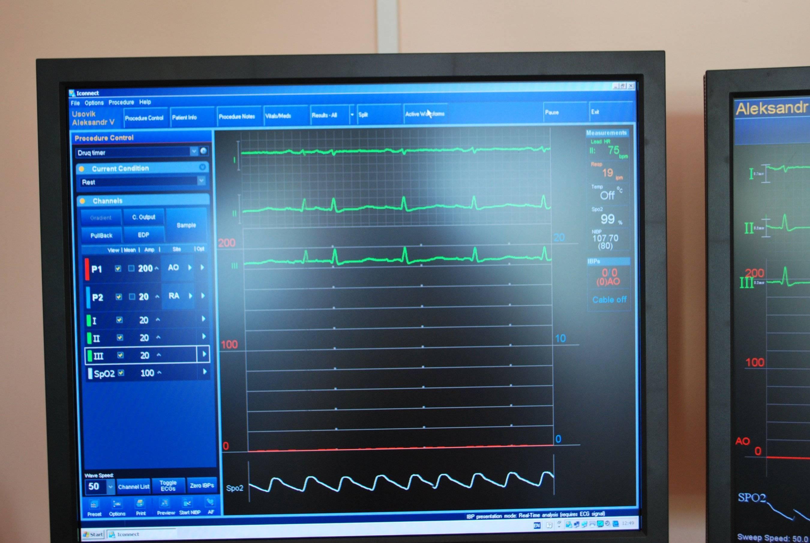 Аритмия сердца - нарушения ритма сердца