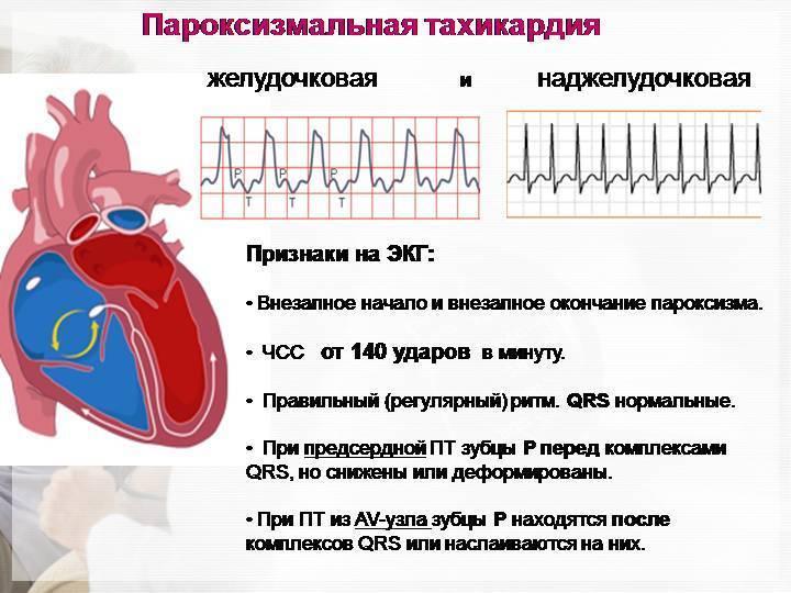 Пароксизмальная мерцательная аритмия: причины, пульс, лечение