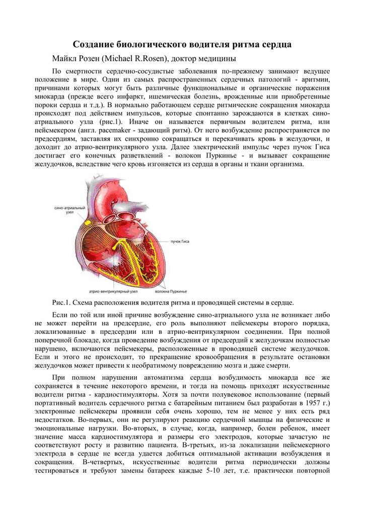 Водитель ритма сердца — википедия
