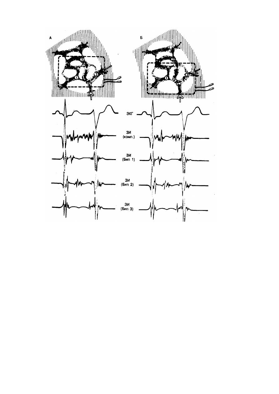 Диагностика аритмии сердца