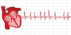Кардиоверсия при мерцательной аритмии отзывы