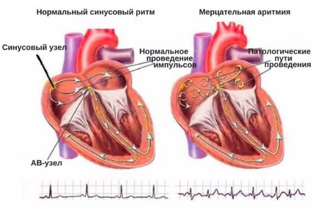 Аритмия сердца: симптомы, лечение, первая помощь