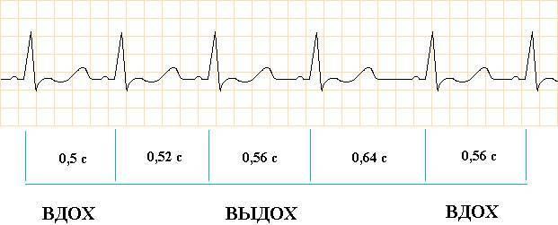 Дыхательная аритмия: что это, на экг, норма или нет?