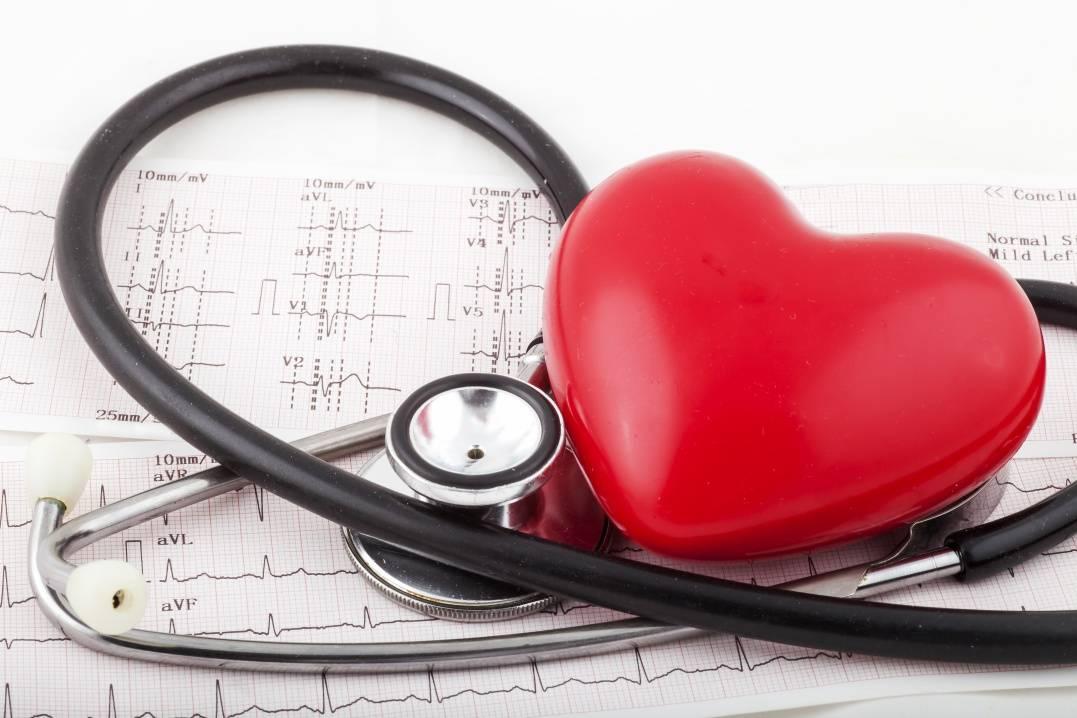 Аритмия: классификация, причины, симптоматика, диагностика и лечение