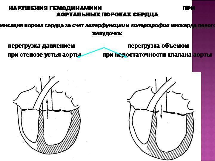 Что такое недостаточность аортального клапана