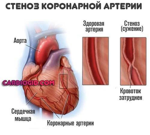 Тахикардия — причины, симптомы, диагностика и лечение