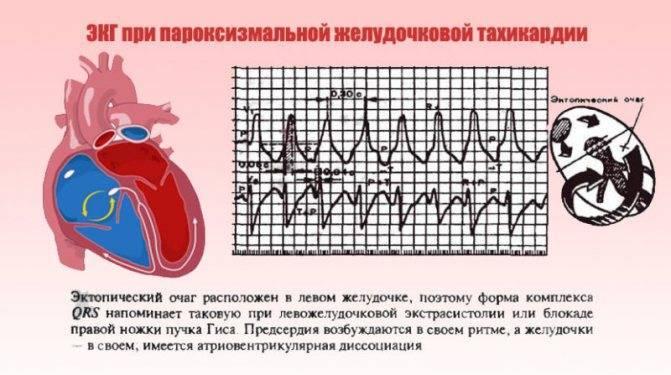 Как лечить тахикардию сердца - экспертно о неприятном