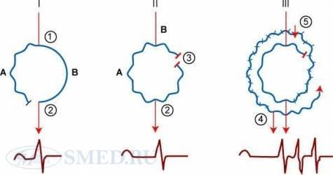 Аритмия сердца: все формы и их разбор, причины, проявления, лечение