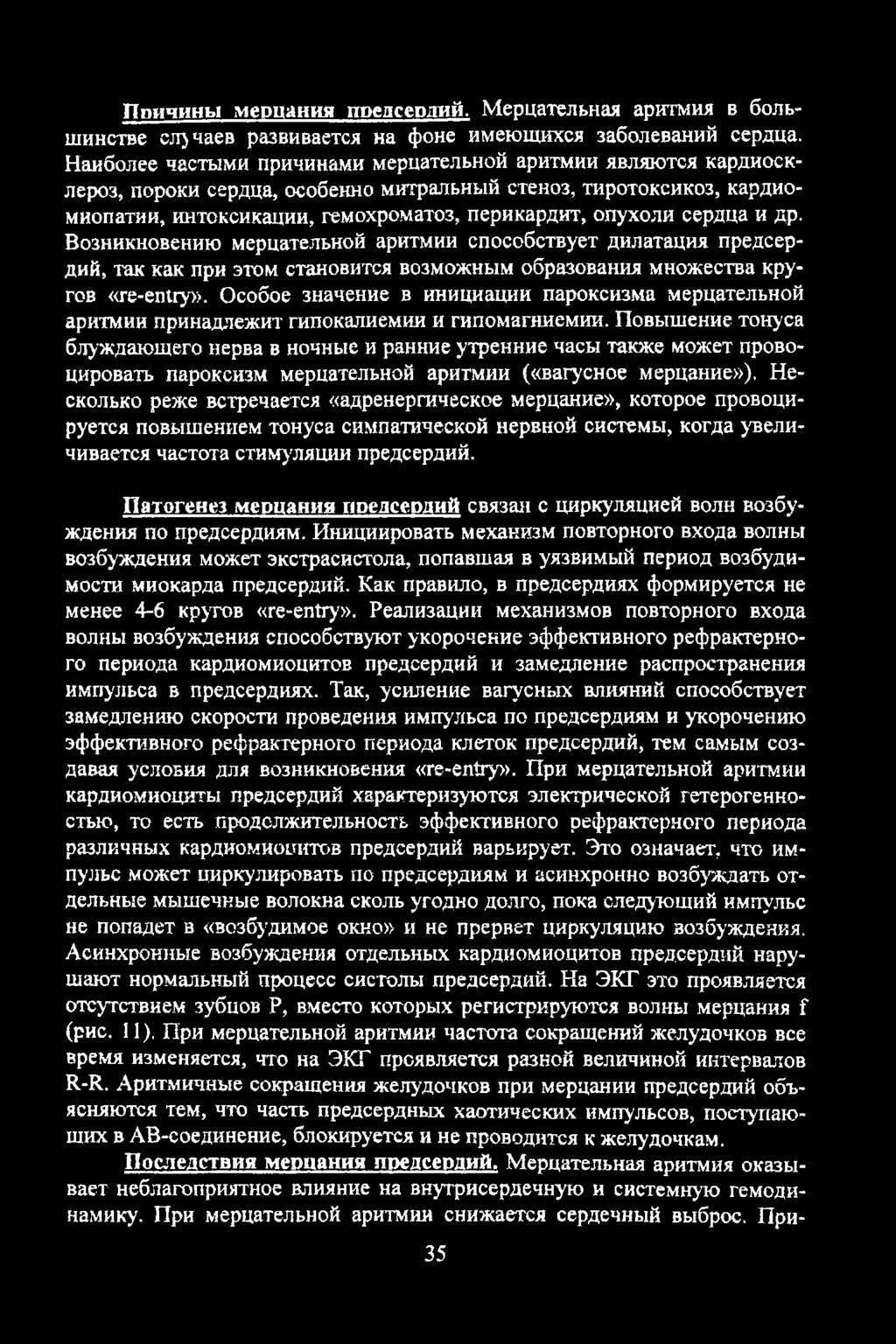 Классификация аритмий по воз