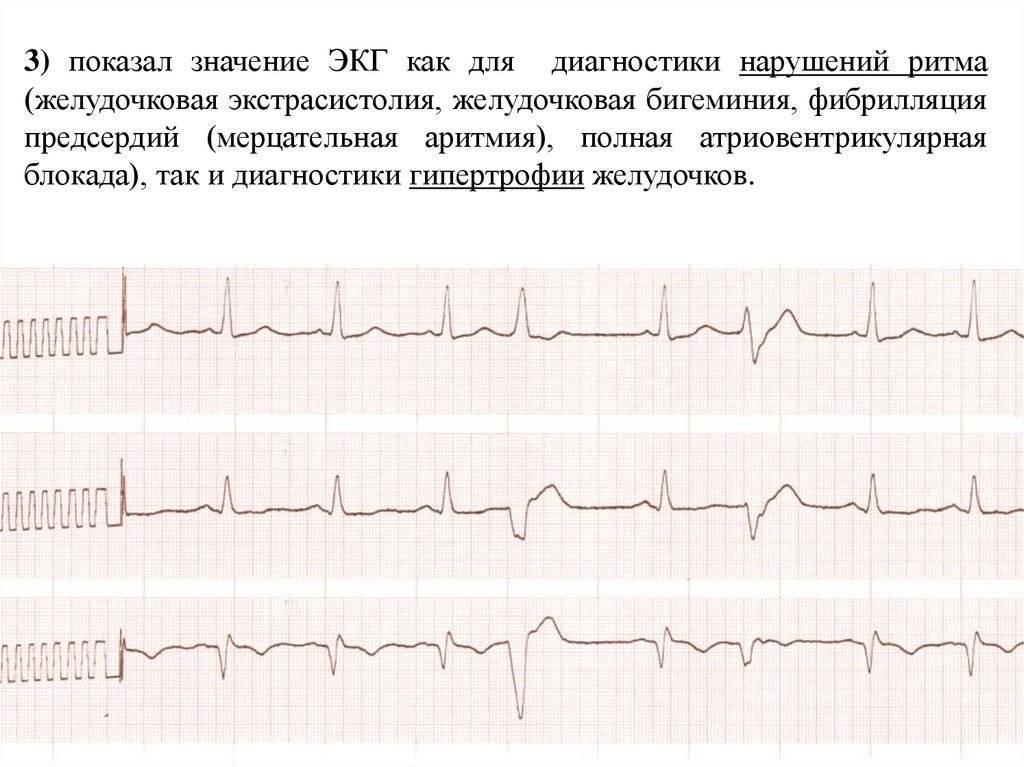 Экстрасистолия: понятие, формы, экг-признаки | кардио болезни