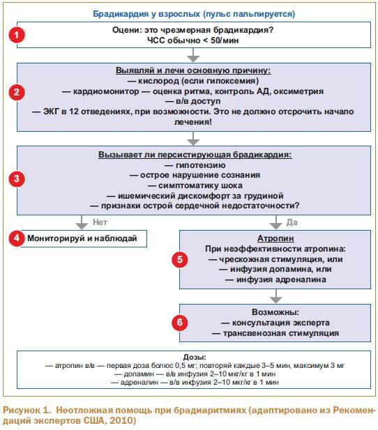 Брадикардия: причины и симптомы, чем она опасна и как лечится у взрослых пациентов