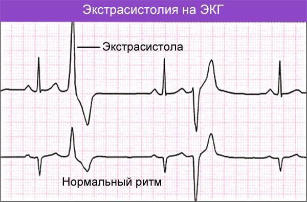 Экстрасистолы лечение народными средствами — лечение сердца