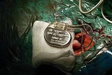 Кардиостимулятор. что это такое, виды, как работает, сколько стоит, операция по установке, жизнь с ним